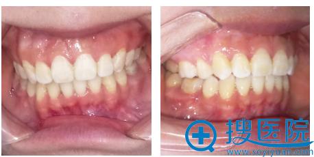 在郑州唯美口腔做隐形托槽牙齿矫正一年效果