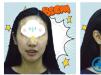 看亲戚推荐我找郑州唯美口腔齐丹丹做的隐形托槽牙齿矫正怎么样