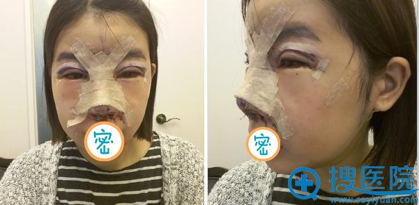 韩国加美朴建昱眼综合+鼻修复术后即刻照片