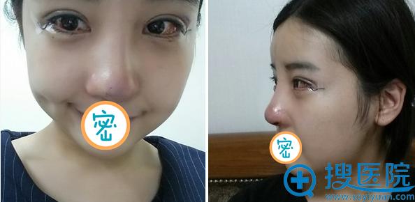 眼综合+鼻修复手术拆线后效果