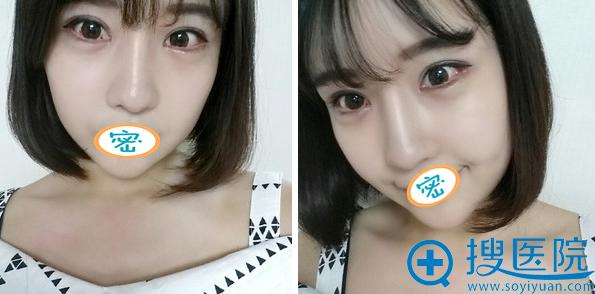 韩国加美眼鼻手术半个月恢复效果