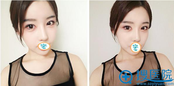 韩国加美鼻修复术后2个月恢复照