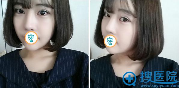 韩国加美朴建昱眼综合术后恢复照