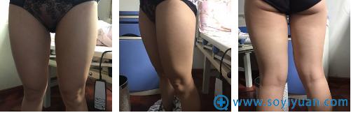 在成都赵博士整形医院做瘦腿术前照