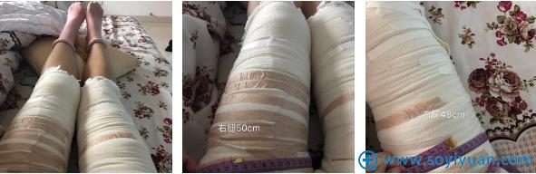 吸脂瘦腿术后第三天的照片