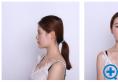 我发现找上海伊莱美邱文苑做的膨体鼻综合隆鼻一点异物感也没有
