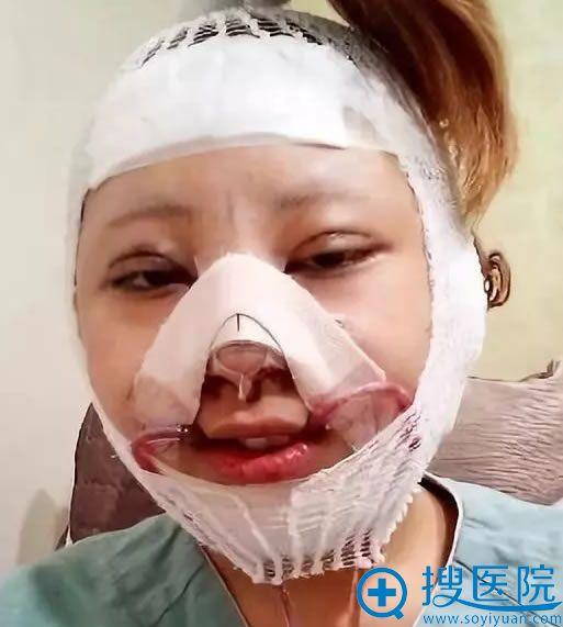 韩国巴诺巴奇面部轮廓手术当天