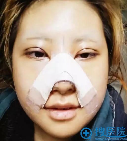 面部轮廓手术恢复3天效果
