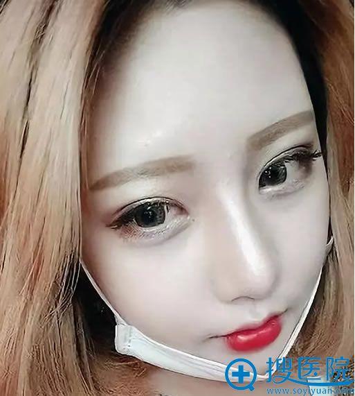 韩国巴诺巴奇轮廓手术22天