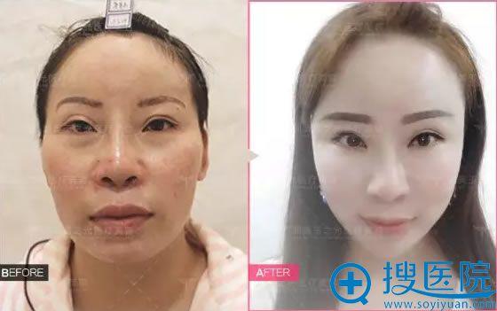 北京玉之光王明利脂肪填充案例对比图