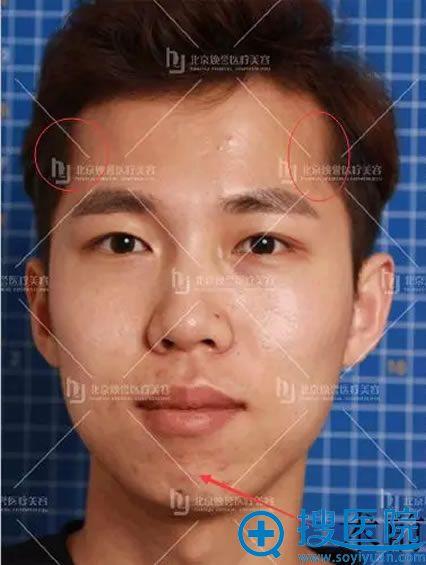 扁平额头和短下巴的正面照片