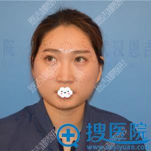 来自武汉恩吉娜医院自体脂肪面部填充案例段小兵还我十足少女感