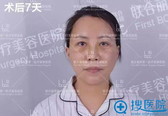 面部年轻化手术7天恢复效果