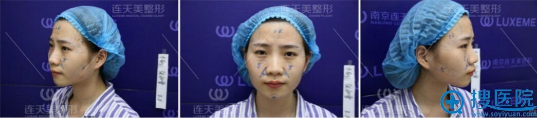 南京连天美自体脂肪面部填充术后1月效果 姬广翰让我不负韶华