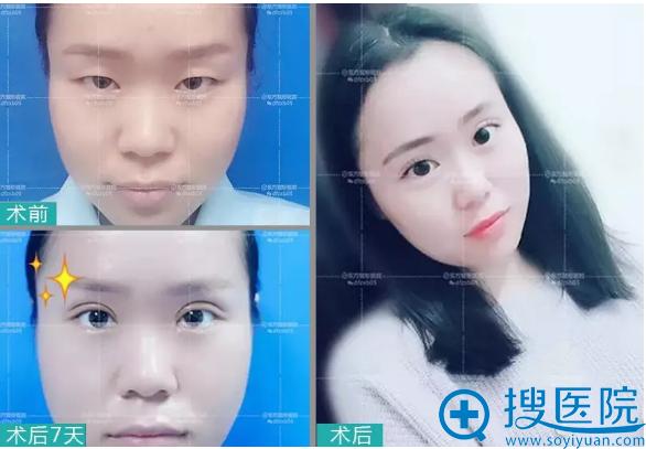 郑州东方整形医院双眼皮7天案例对比图