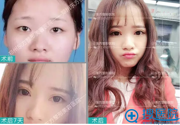 郑州东方整形医院灵动芭比眼双眼皮案例