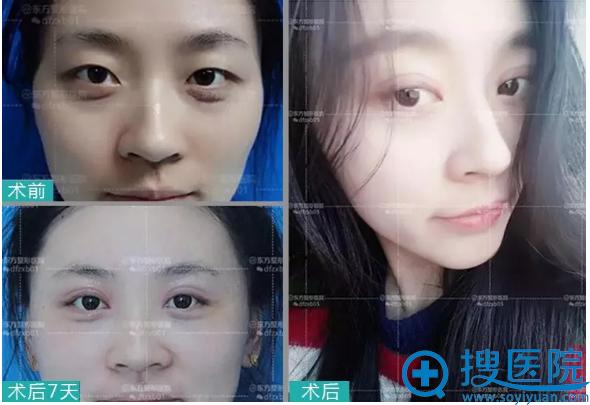郑州东方整形医院韩式小清新双眼皮案例