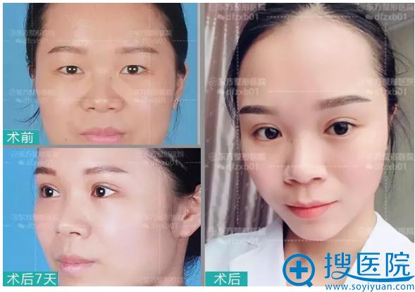 郑州东方整形医院双眼皮案例对比图