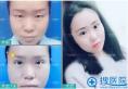 在郑州东方整形医院做过双眼皮的过来人给大家分享我的手术经验