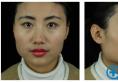 用我的颧骨下颌角案例来告诉你上海首尔丽格朴兴植整脸型怎么样