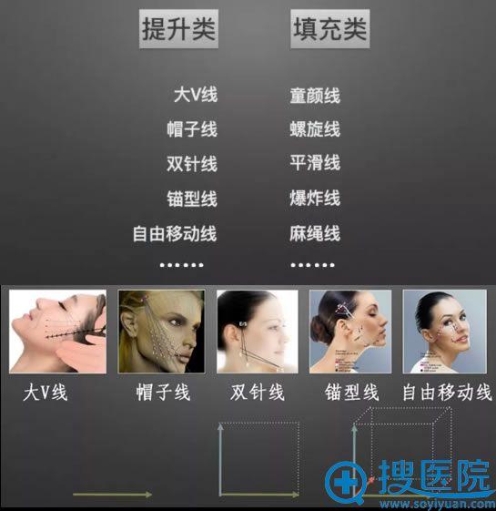 面部线雕埋入线的分类