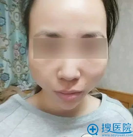 面部线雕失败案例效果