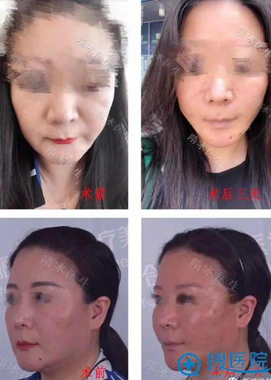 高颧骨做面部线雕案例效果