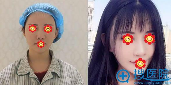 莫莫做鼻综合手术前后效果对比图