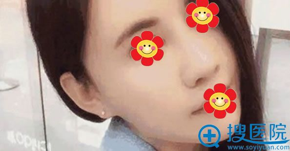 北京莫琳娜兰文贤鼻综合案例