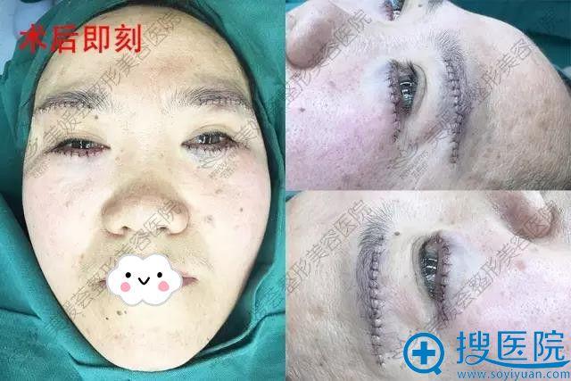 太原美媛荟皮瓣法祛眼袋+提眉术后即刻效果