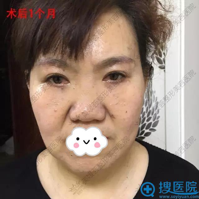 太原美媛荟祛眼袋+提眉真人案例