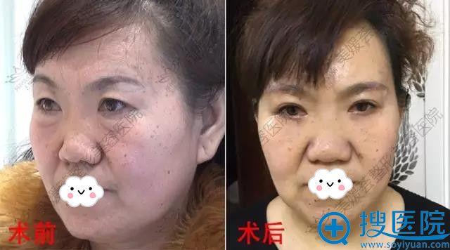 太原美媛荟祛眼袋+提眉术前术后对比