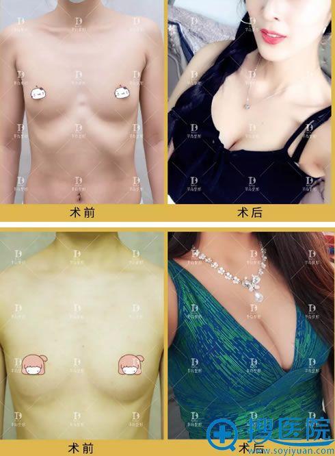 华韩整形李京假体隆胸真人案例