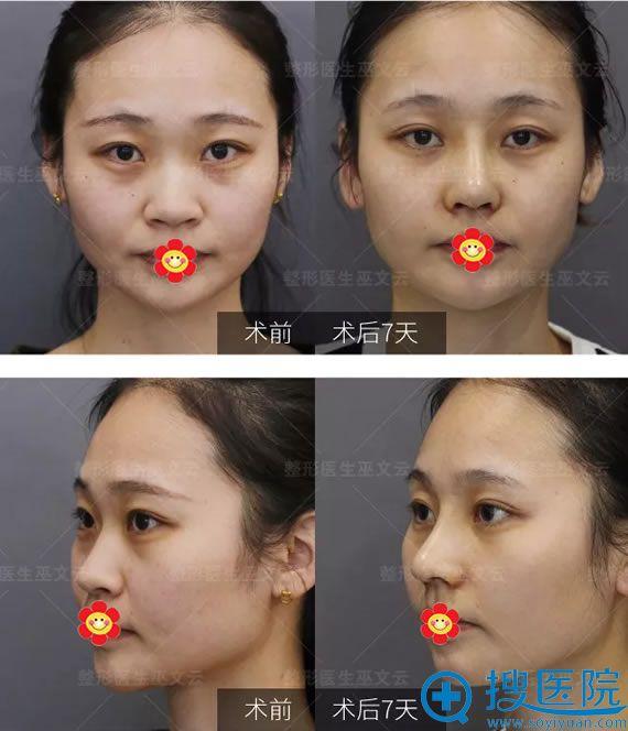 鼻翼缩小术后7天效果对比图