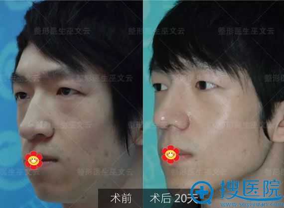 男士做鼻翼缩小案例20天效果对比图