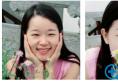 之前考虑去长沙美莱还是雅美好后来朋友推荐我找邹俊峰做双眼皮