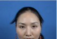 我是对比了长沙美莱潘卫峰和刘欢医生的双眼皮案例后找的潘主任