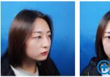 看朋友找长沙美莱刘欢割的双眼皮手术案例效果不错我也来试试