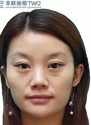 北漂的我选择北京丰联丽格王莉医生做注射玻尿酸填充面部凹陷