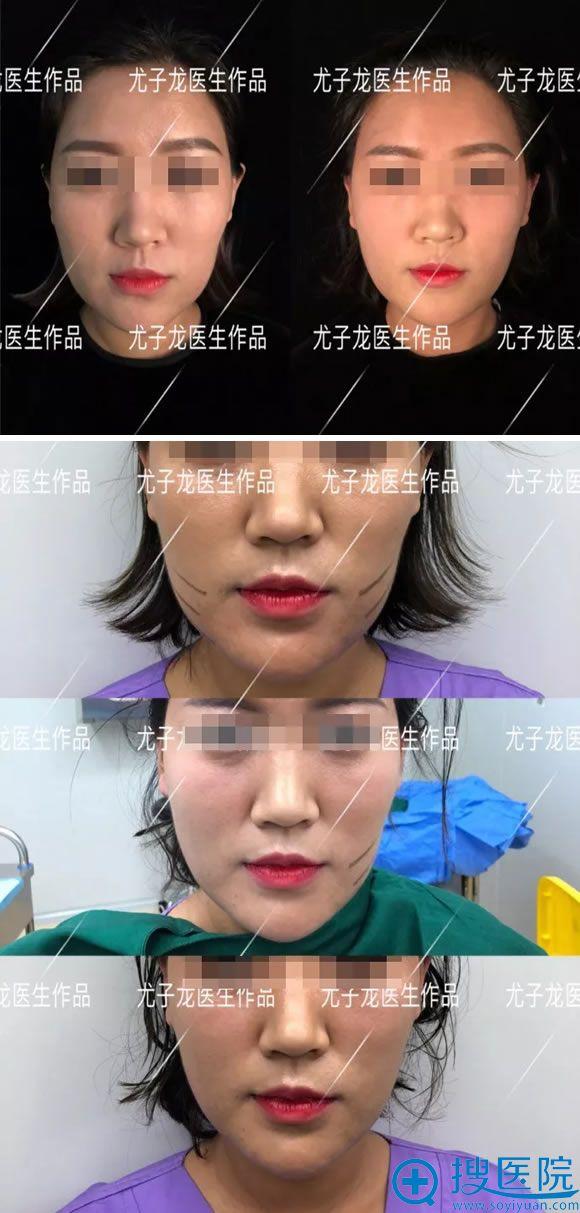 尤子龙医生的面部线雕案例