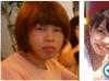 征得妈妈同意后找上海九院袁捷做了改脸型突嘴矫正双眼皮和隆鼻