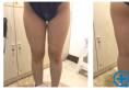 说说我去上海九院整形科找濮哲铭做大腿吸脂的一些感受和经验