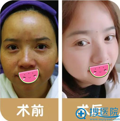 贵阳华美皮秒祛斑术前术后对比