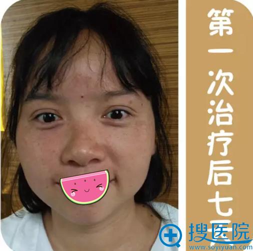 贵阳华美次祛斑治疗术后效果