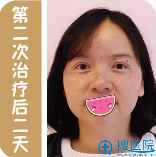 贵阳华美第二次祛斑治疗恢复情况