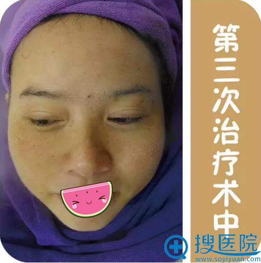 贵阳华美第三次祛斑治疗术中