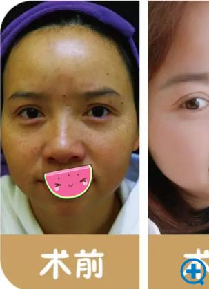 贵阳华美祛黄褐斑+嫩肤治疗真实经历 见证皮秒祛斑的神奇效果