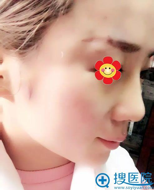 在郑州一美做鼻综合修复10天效果