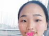 深圳艾妍徐荣阳眼综合+肋软骨鼻综合让她逆袭 术前术后对比强烈