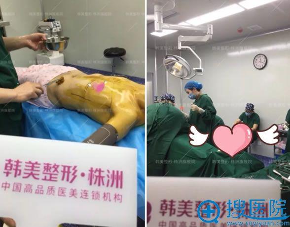 株洲韩美刘文波假体隆胸手术过程